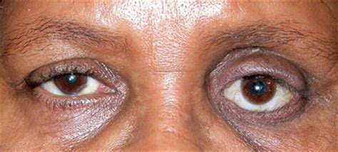 Evaluation of the Anophthalmic Socket