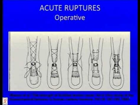 Acute Achilles Tendon Rupture: Instructional Lecture and