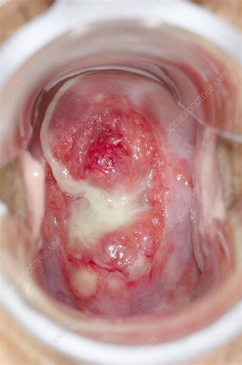 Nabothian cysts of the cervix - Stock Image C019/4138