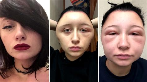 Woman's Head Doubled in Size After Allergic Reaction to